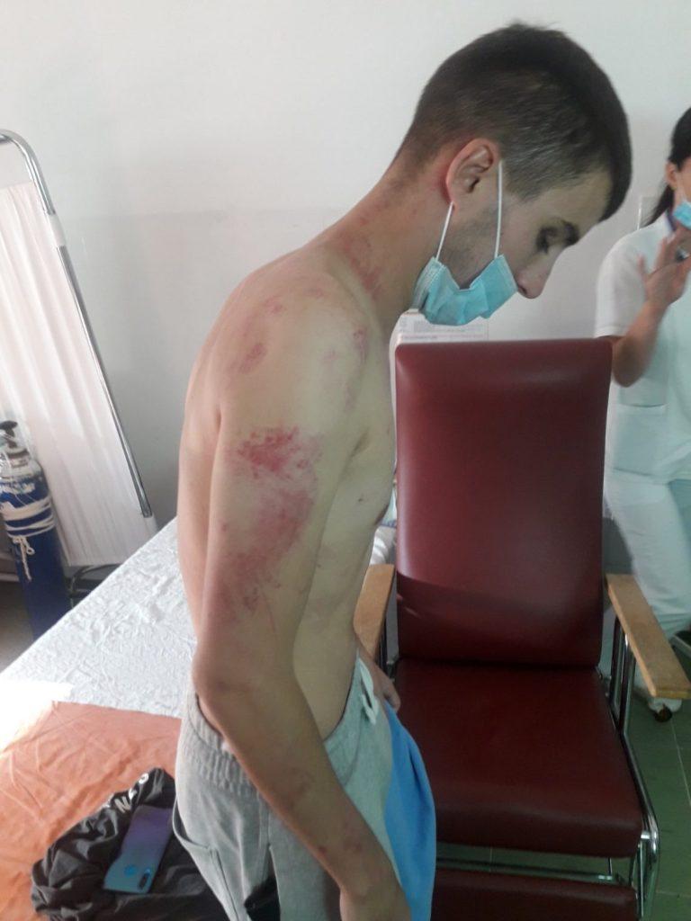 Leutar.net Mladić hitno operisan nakon što ga je policajac oteo i brutalno pretukao