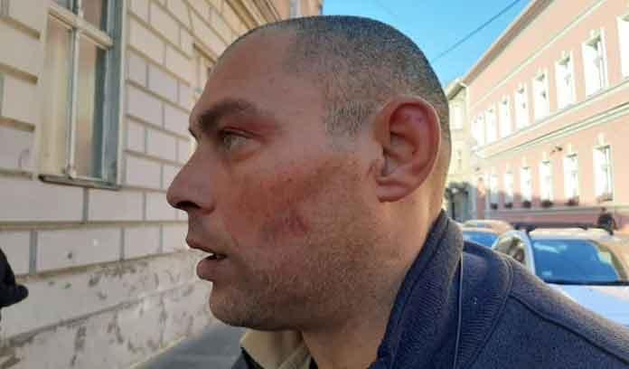 Leutar.net Novosadski policajci ga ugazili od batina jer su mislili da je lopov