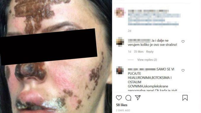 Leutar.net Beograđanke unakažene u salonu lepote: Kao žrtve požara smo